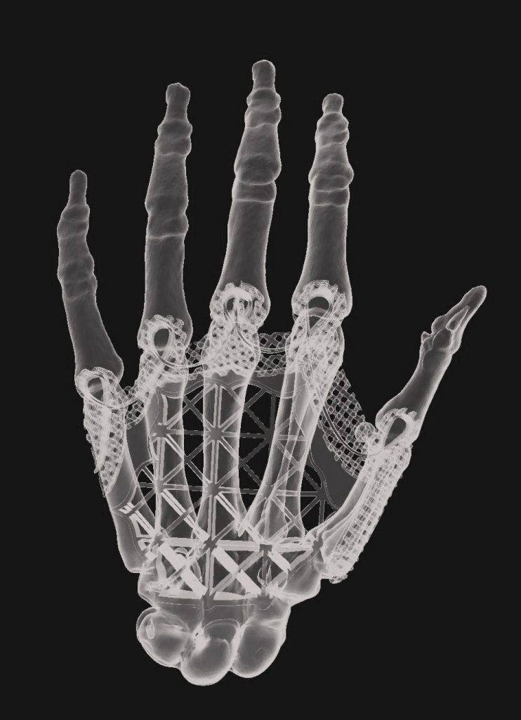 Hand design from scan data and 3D modeling.